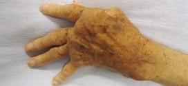 Una mano con evidenti segni di artrite reumatoide - Foto: it.wikipedia.org/wiki/Artrite_reumatoide (creativecommons.org/licenses/by-sa/3.0)