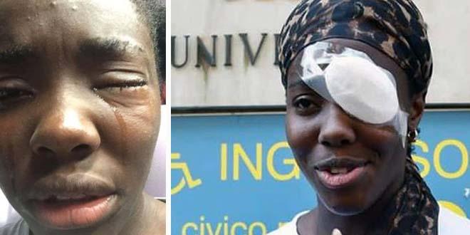 Razzismo: Daisy Osakue, nelle foto che ha postato oggi su Facebook per denunciare l'accaduto