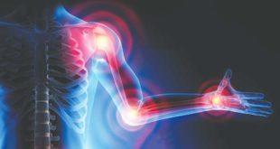 Valdagno, convegno su dolore e malattie reumatiche